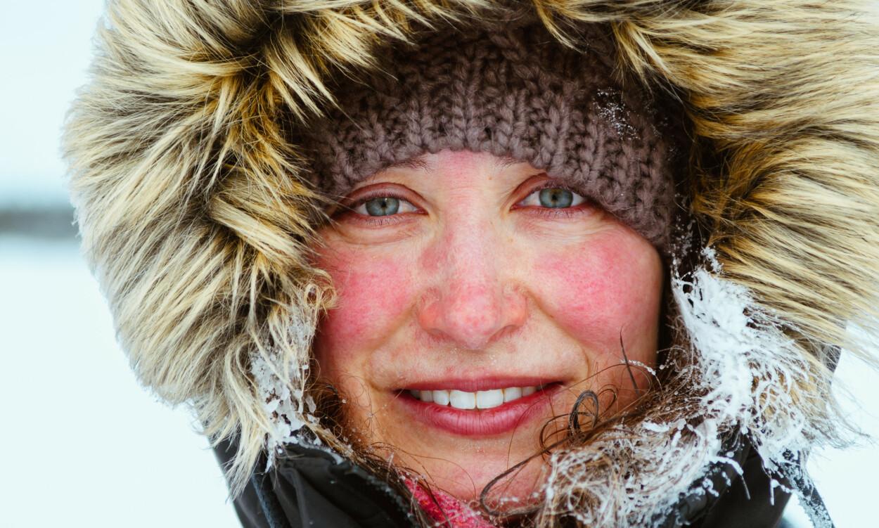 FROSTSKADER: Værbitt hud hos denne flotte kvinnen. Vind, kuldegrader, bekledning og eksponeringstid er faktorer som gjør at man er mer utsatt for frostskader. Foto: NTB