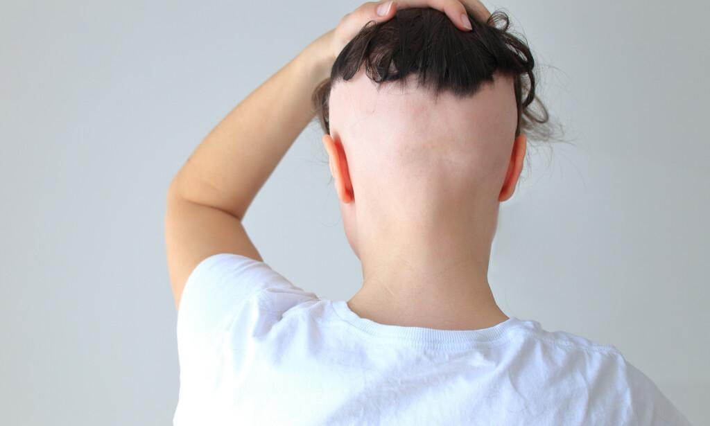 HÅRTAP: Alopecia areata hos en kvinnelig pasient. Akutt hårtap kan oppleves dramatisk og det er godt å vite årsak til tilstanden og om den kan behandles. Foto: Kolabava Nadzeya / Shutterstock / NTB