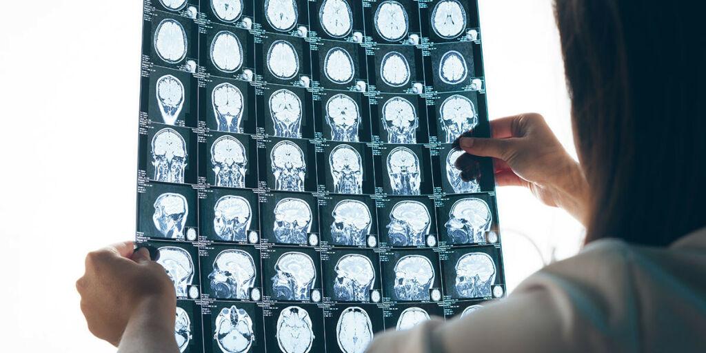 image: Liten flekk i hjernen