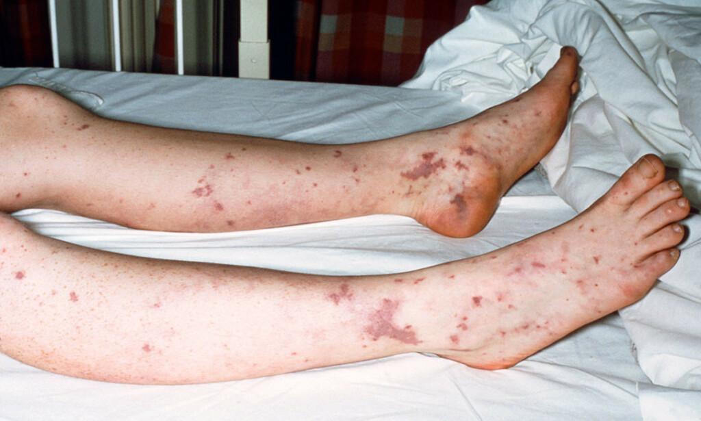 HUDBLØDNINGER (PETEKKIER): Hvis du får slike røde eller blårøde blødninger i huden, som fortsatt er synlig når du trykker glass mot dem, bør du kontakte lege. Foto: Science Photo Library /NTB