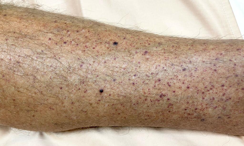 IMMUNOLOGISK TROMBOCYTOPENI: Flere hudblødninger på legg, hos en person med immunologisk trombocytopeni. Foto: TisforThan / Shutterstock / NTB