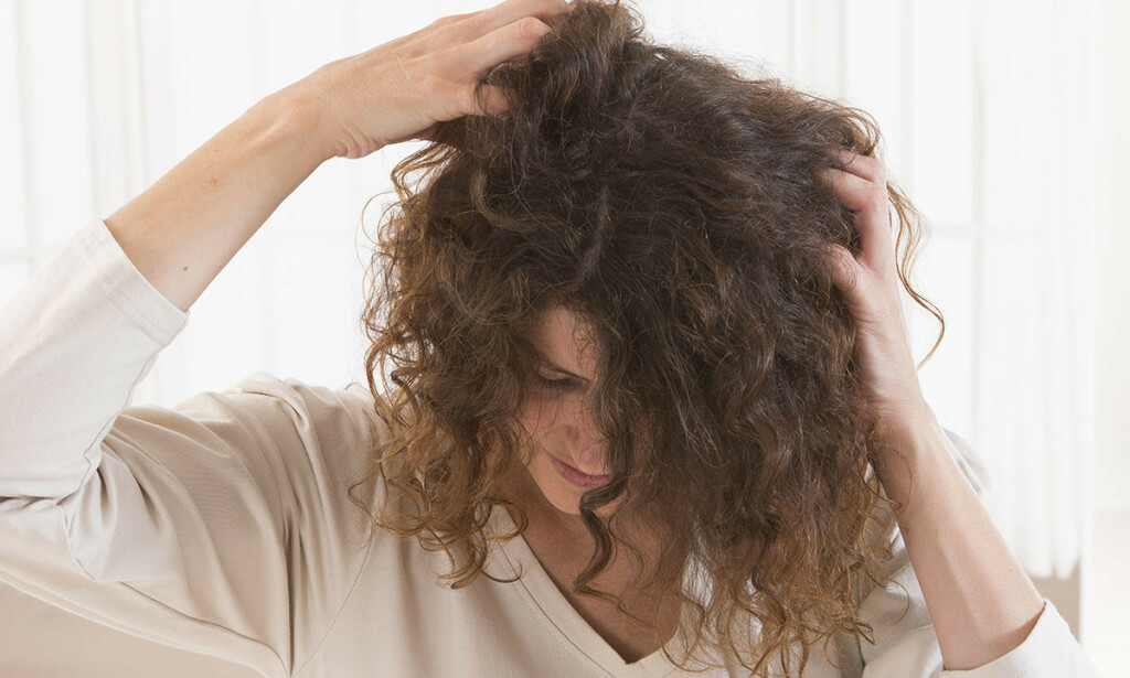 DET KLØR: Irritasjon i hodebunnen kan ha mange årsaker. Foto: JPC-PROD / Shutterstock / NTB