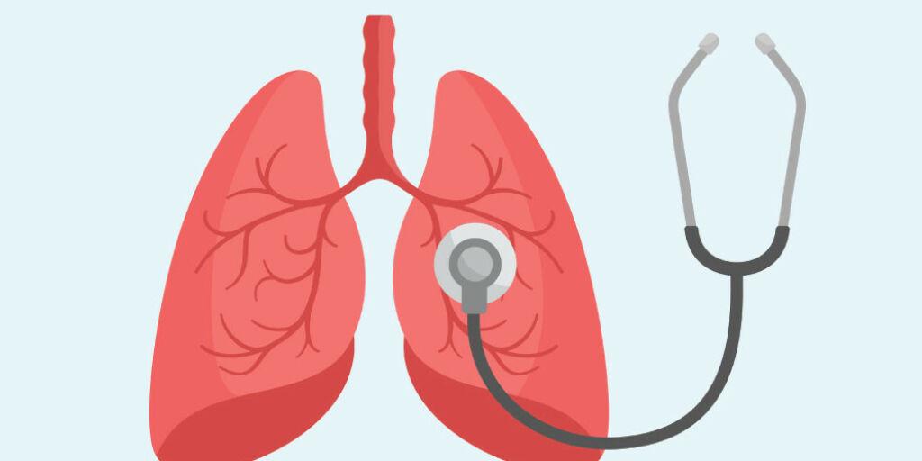 image: Kan man finne ut i ettertid om man har hatt blodpropp i lungene?