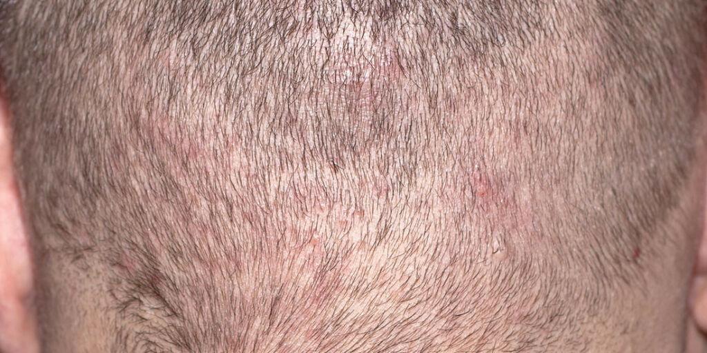 image: Eksemflekker i hodebunnen