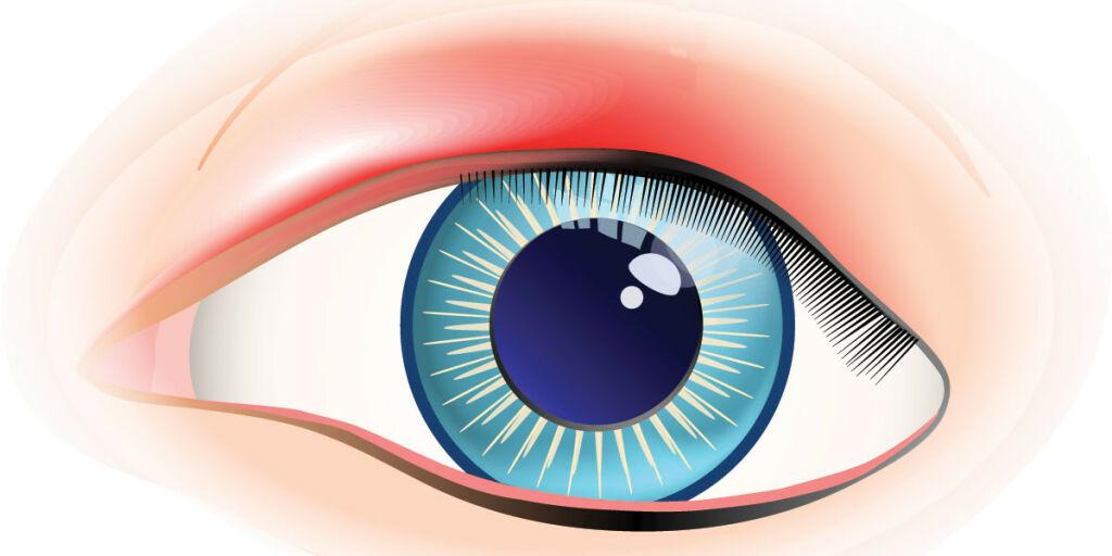 image: Stor klump på øyelokket