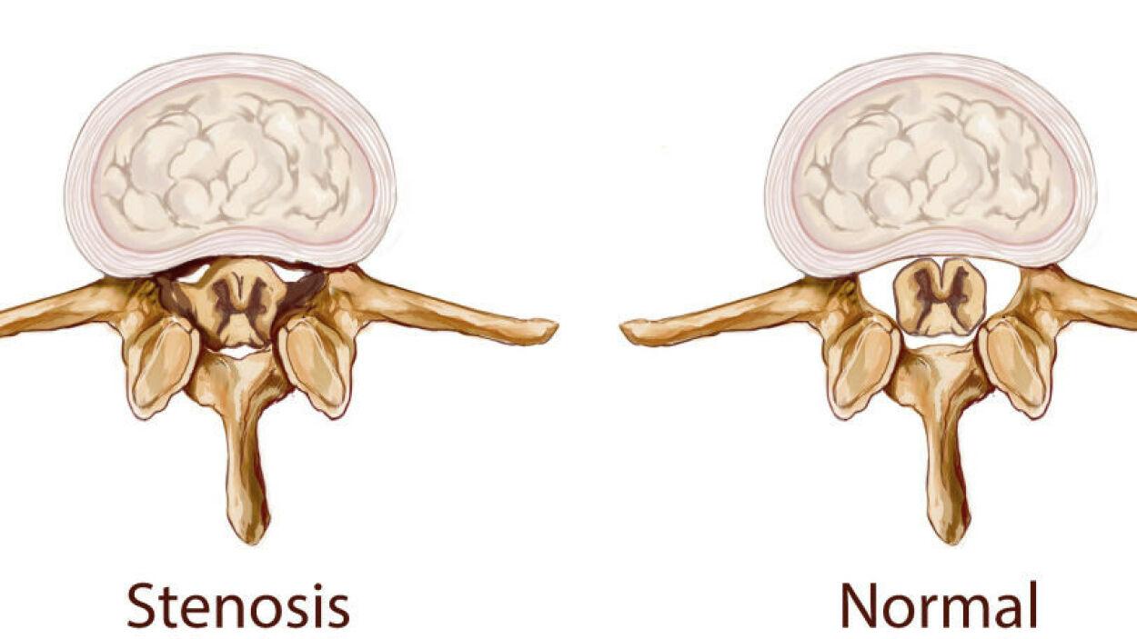 image: Spinalstenose: MR viser trange forhold for nerver i spinalkanalen i ryggen