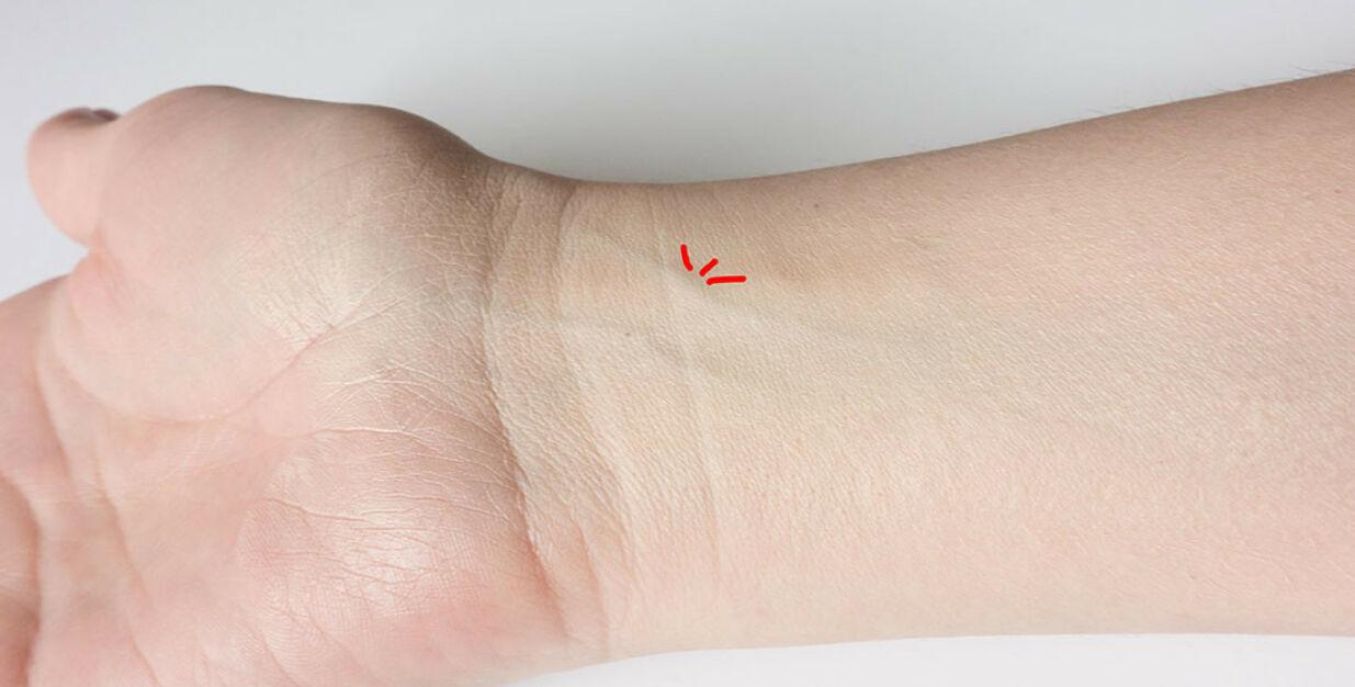image: Synlige pulsslag på håndleddene
