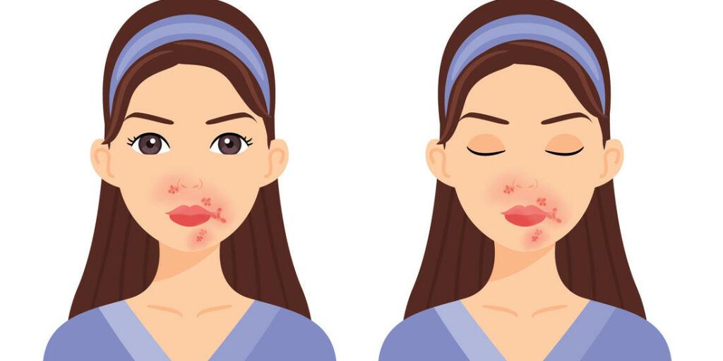 image: Utslett rundt munn med gule skorper. Mulig brennkopper