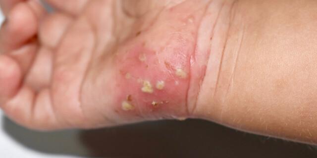 Klør huden Neglesvamp