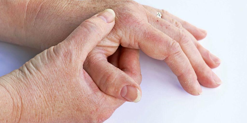 image: Finnes det behandling eller medisin for psoriasisartritt?