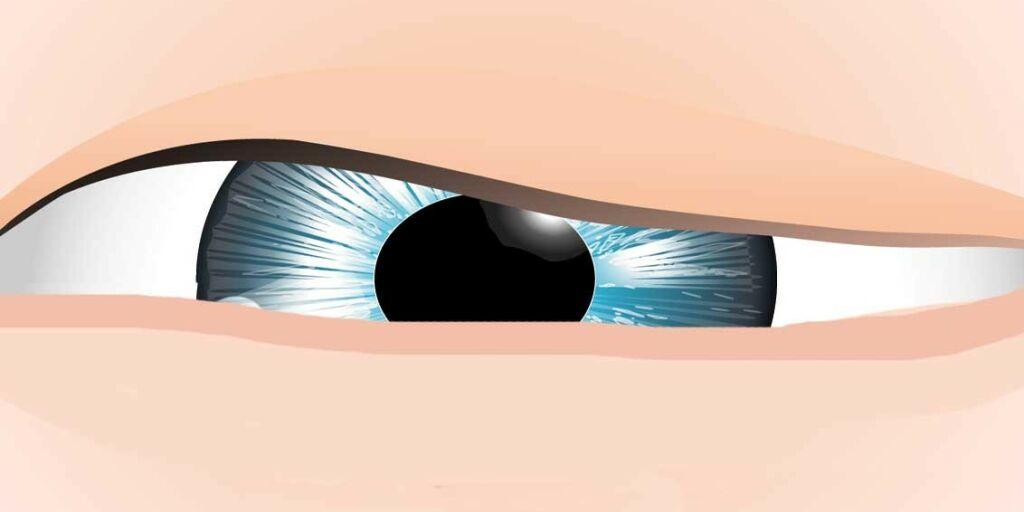 image: Øyelokk stenger seg ikke helt. Lagopthalmos?
