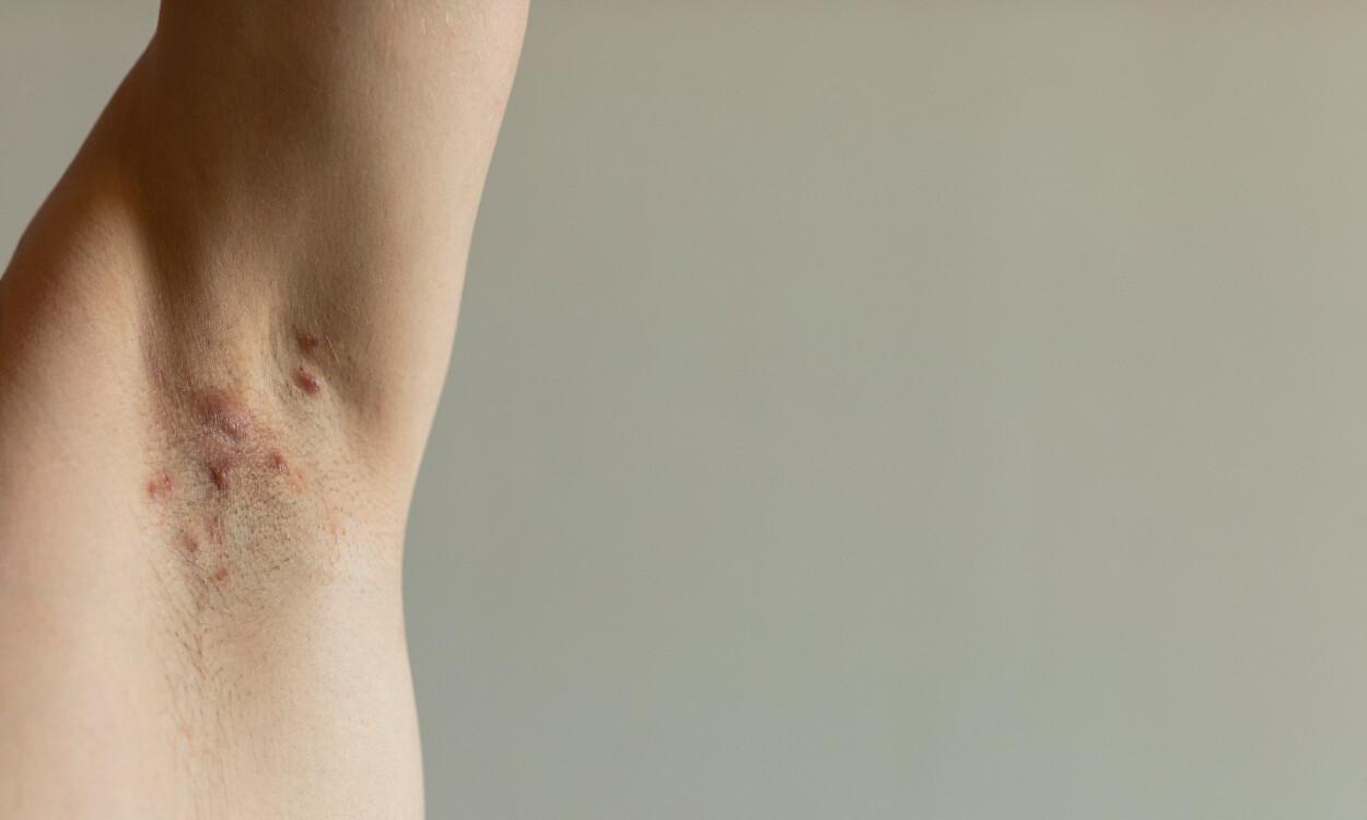 BYLLER I HUDEN: Typisk utbrudd av kviselignende utslett i en armhule. Foto: Lea Rae / Shutterstock / NTB