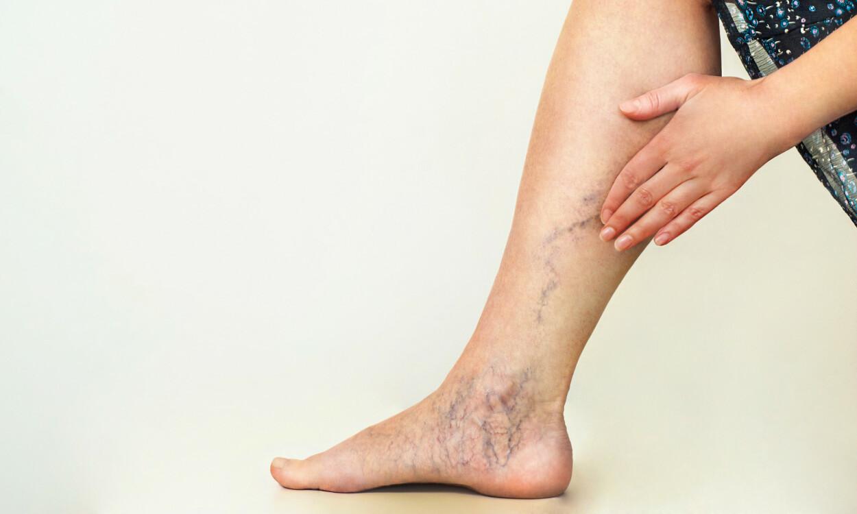 ÅREKNUTER: Åreknuter på leggene er en vanlig tilstand som hyppigere rammer kvinner enn menn. Foto: vasara / NTB