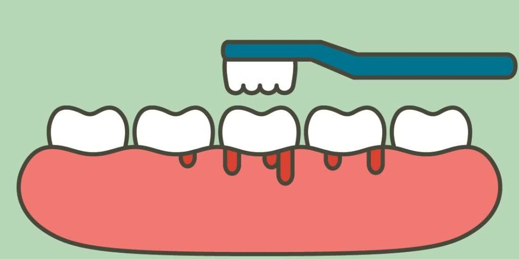 image: Betent tannkjøtt på fortenner. Hva kan det skyldes?