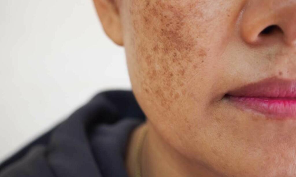 MELASMA: Uttalt pigmentering til stede i kinn hos kvinne. Foto: DUANGJAN J / Shutterstock / NTB