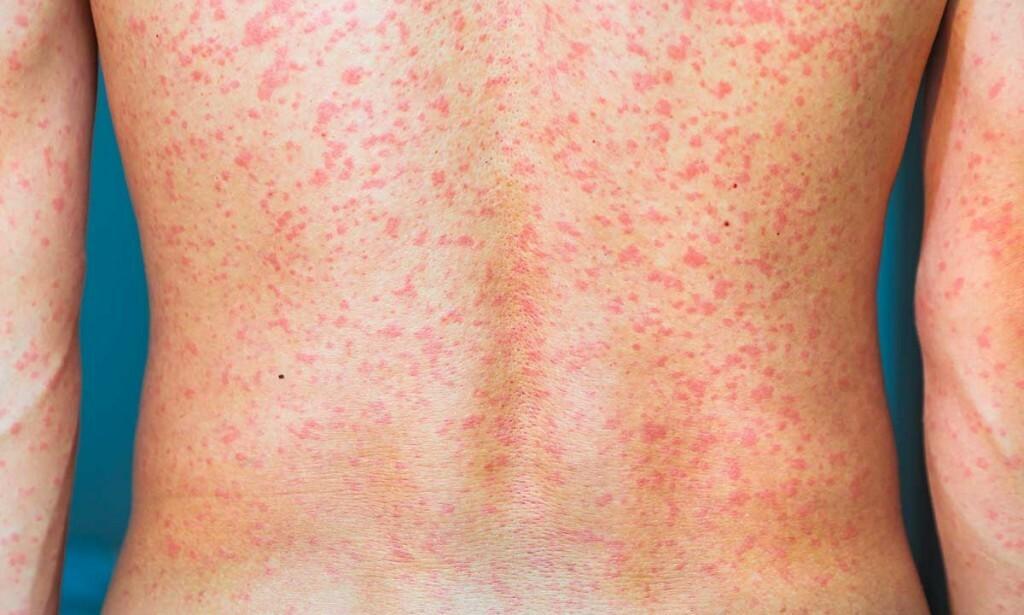 VARMEUTSLETT: Voksne kan få elveblest etter trening og varm dusj. Da kan antihistaminer være til god hjelp. alphaxi / Shutterstock / NTB