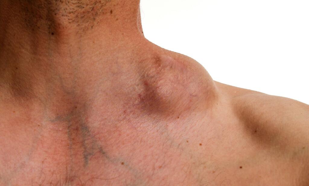 FORSTØRRET LYMFEKNUTE: Forstørret lymfeknute er et av symptomene på lymfekreft. Foto: Gabor Kenyeres / NTB