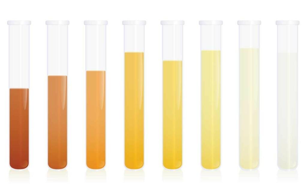FARGESKALA: Når urinen blir mer brun enn gul, er det grunn til å følge litt med. Urin skal ikke være mørk over tid hvis du får i deg nok væske. Illustrasjon: Peter Hermes Furian / Shutterstock / NTB