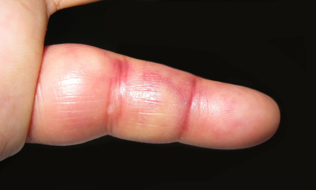 VERKEFINGER: Fingeren er blodsprengt, og det er vondt å bøye den. Foto: CHEN WS/Shutterstock/NTB.