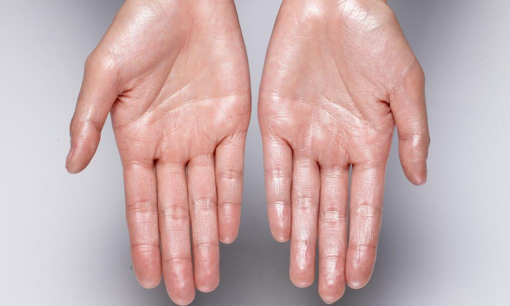 Hyperhidrose: Noen opplever overdreven svette i håndflater som kan føre til ødelagte tastatur eller psykisk belastning ved for eksempel håndhilsing. Foto: JoEimaGe / Shutterstock / NTB