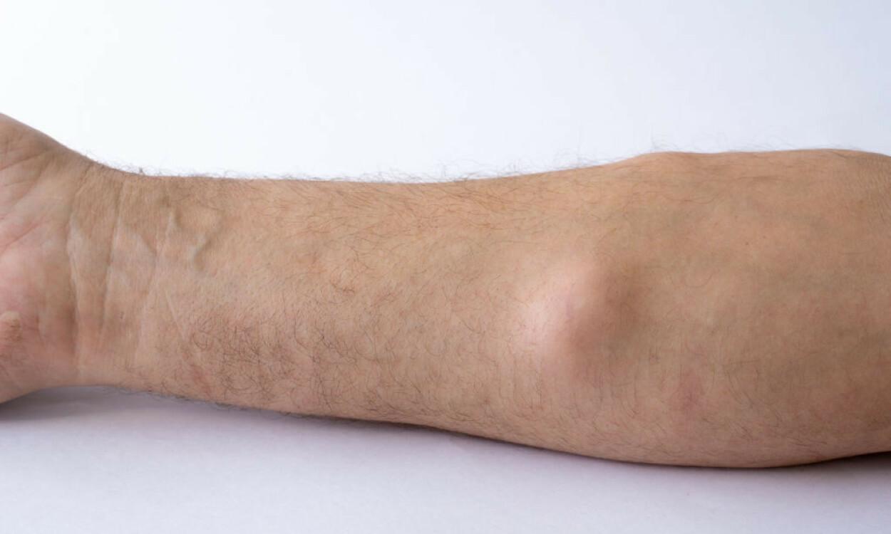 IKKE FARLIG: Bildet viser et lipom på underarmen. Lipom er eksempel på en ufarlig, godartet svulst. Foto: ulev33 / Shutterstock / NTB