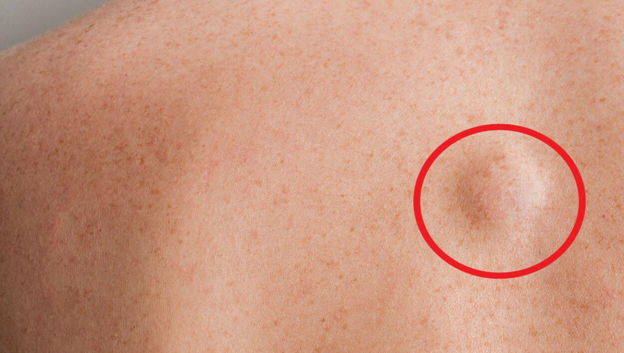 GODARTET: Lite lipom på ryggen til en mann. Lipom er en godartet svulst. Foto: Cristian Storto / Shutterstock / NTB
