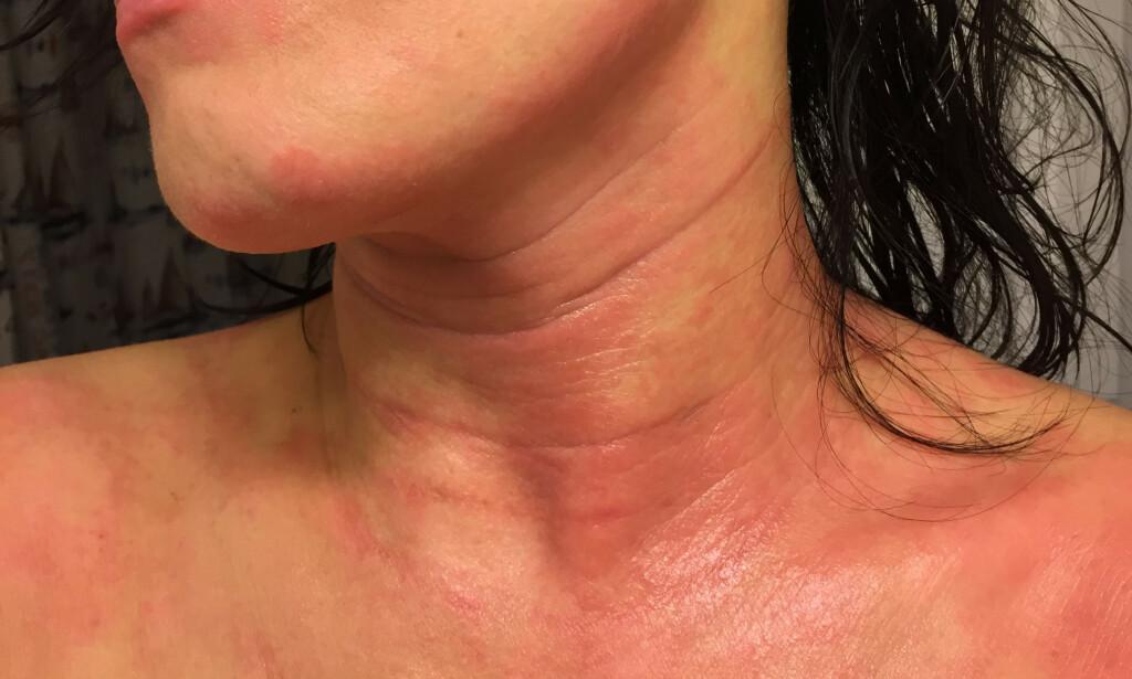 UTSLETT: Eksem i ansiktet og på halsen hos denne unge kvinnen kan skyldes rester av MI i håret. Foto: DoanDoanDoanN/Shutterstock/NTB