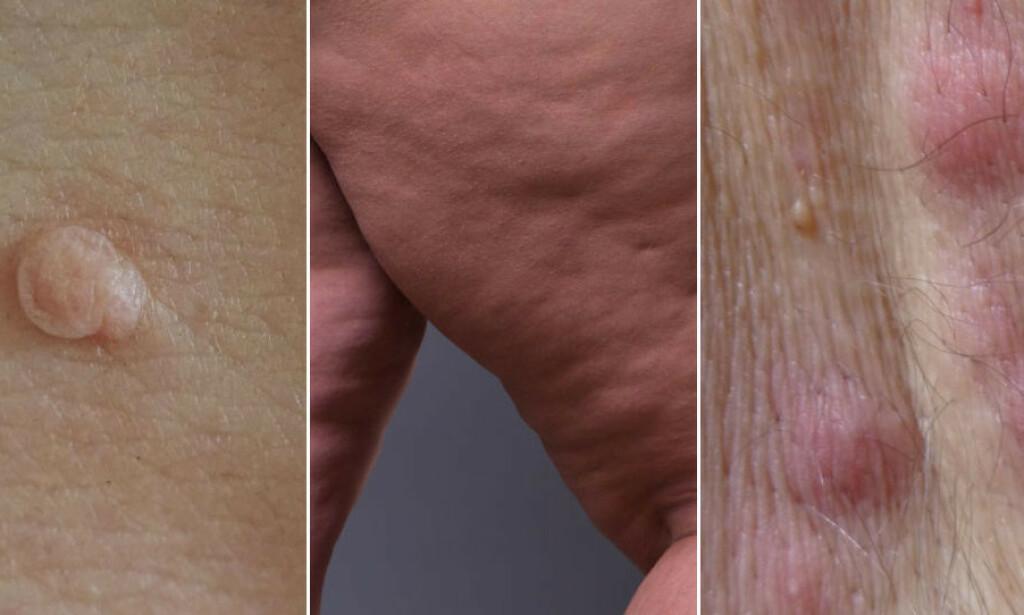 ØKT VEKT KAN GI FLERE HUDPROBLEMER: Både skintags, cellulitter og svettekjertelbetennelse forekommer oftere hos overvektige. Foto: onstockphoto / staras / guentermanaus / Shutterstock / NTB