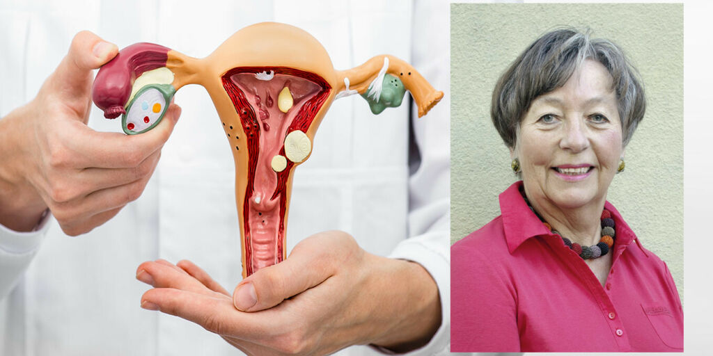 image: Tre spørsmål gynekologen ofte får