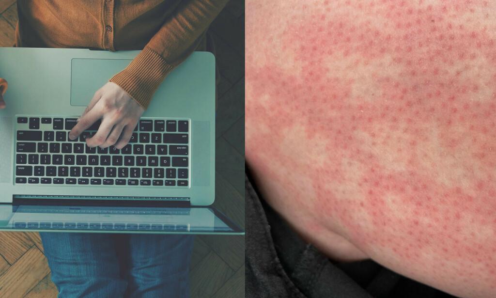 LAPTOP KAN GI HUDPLAGER: Et utslett som ligner på et nett kan utvikle seg på lårene ved mye bruk av laptop som avgir varme. Foto: Ivan Kruk / Lorna Roberts / Shutterstock / NTB
