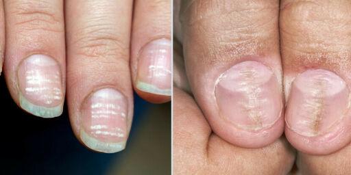 image: Hudlege: - Dette betyr ulike negleforandringer